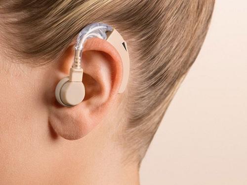 Слухов апарат SHA15, поставен в ухото